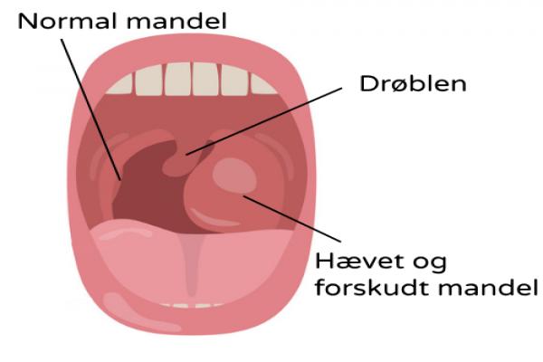 Mandler hævede Haevede Mandler